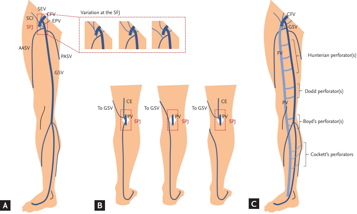Chronic Venous Insufficiency And Varicose Veins Of The Lower Extremities
