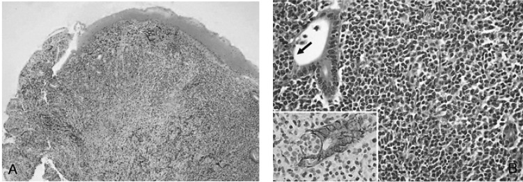 ... Lymphoma Probably Transformed from the Low-grade Gastric MALT Lymphoma