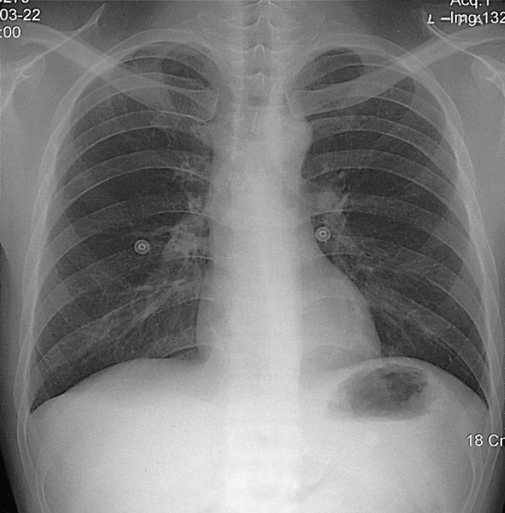 A Case of Gastric Tuberculosis Mimicking Advanced Gastric ...  A Case of Gastr...